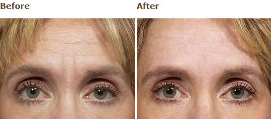 Frownies, the Natural Alternative to Botox