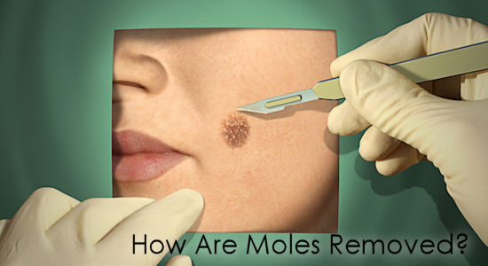 How are Moles Removed