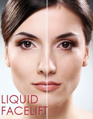 Why get a Liquid Facelift?