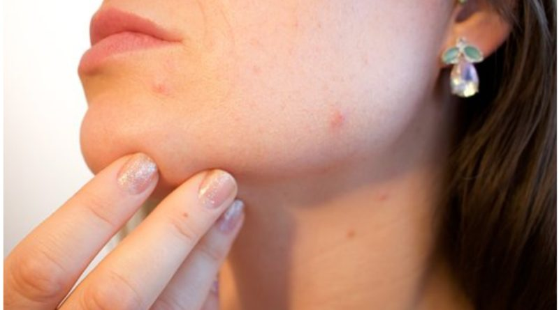 Skincare Tips For Acne-Prone Skin